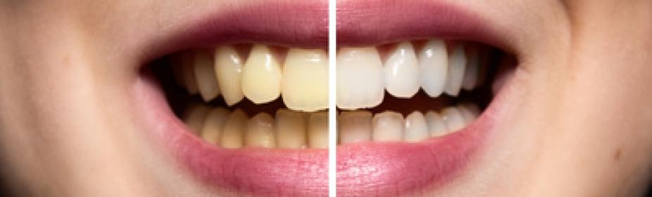 centres implants dentaires espagne barcelone prix bridges. Black Bedroom Furniture Sets. Home Design Ideas