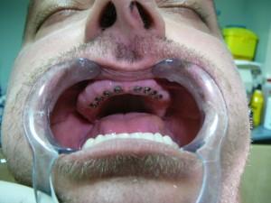 implant dentaire maroc