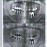 clinique dentaire Espagne avis